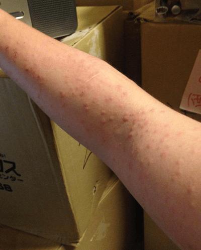 うつる チャドクガ 皮膚 炎